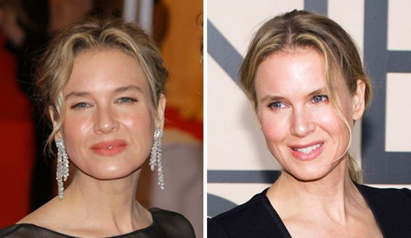 Renee Zellweger Before And After Eyes Sexy Stamp: Renée...