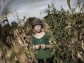 Albino-Malawi-afp.jpg