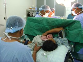 C-section birth