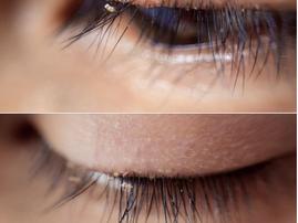 lash lice