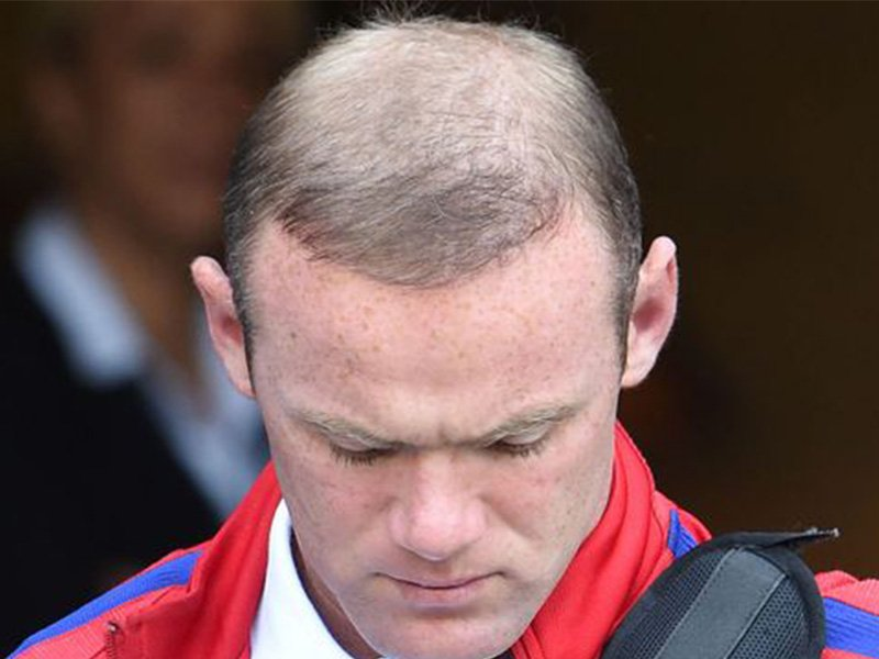 We Finally Know What Happened To Wayne Rooney S Hair