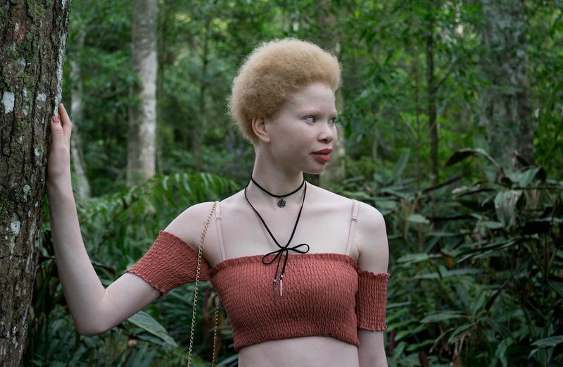 beautiful news pic albino