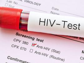 hiv testing / istock