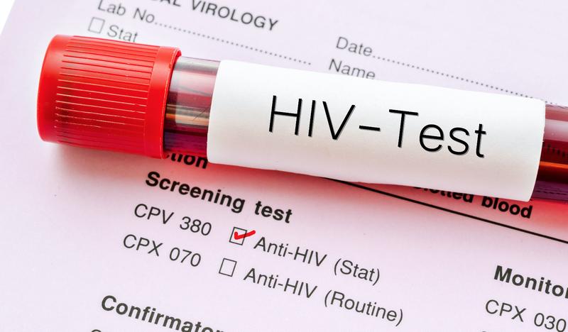 HIV dating sivusto SA