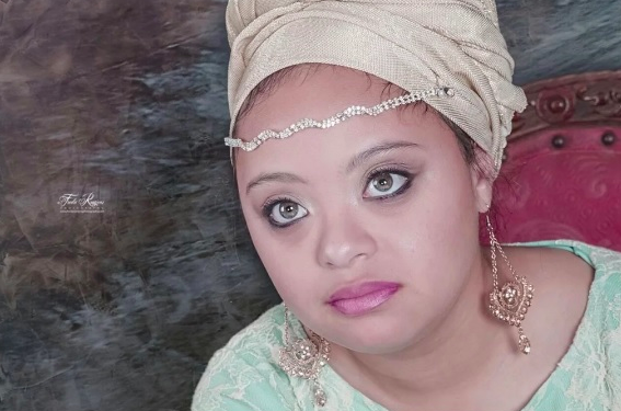 WATCH: Down Syndrome model changed the face of beauty in South Africa