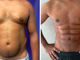New plastic surgery technique makes belly fat look like abs