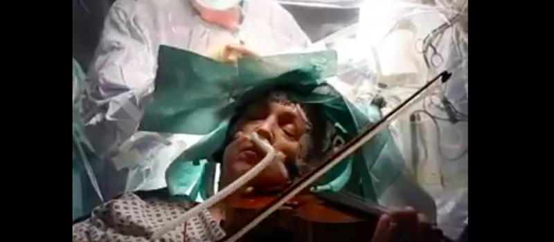 Woman Plays Violin While Getting Brain Operation