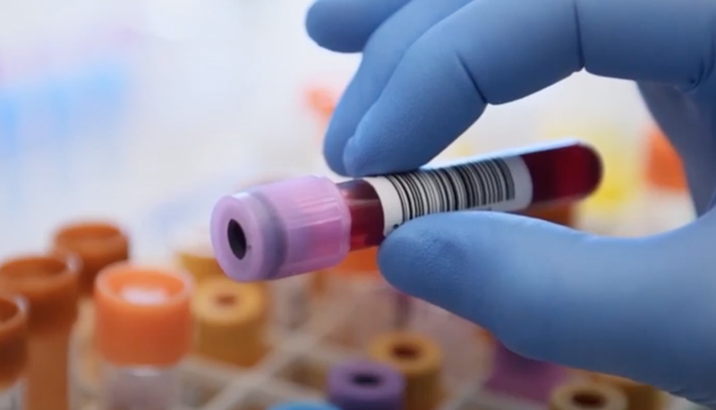 Scientists developing blood test that predicts when person will die