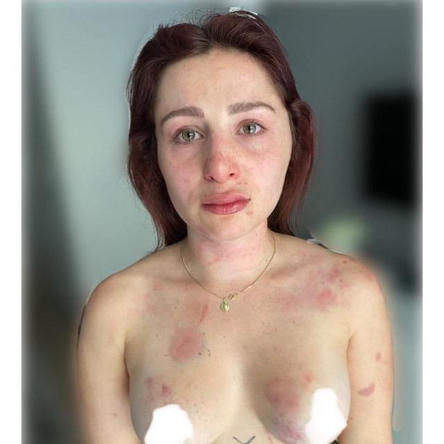 Pictures of Anna Insam after being physically abused