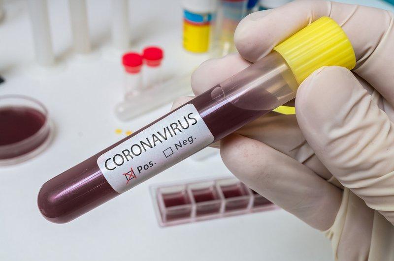 covid-19 coronavirus test positive