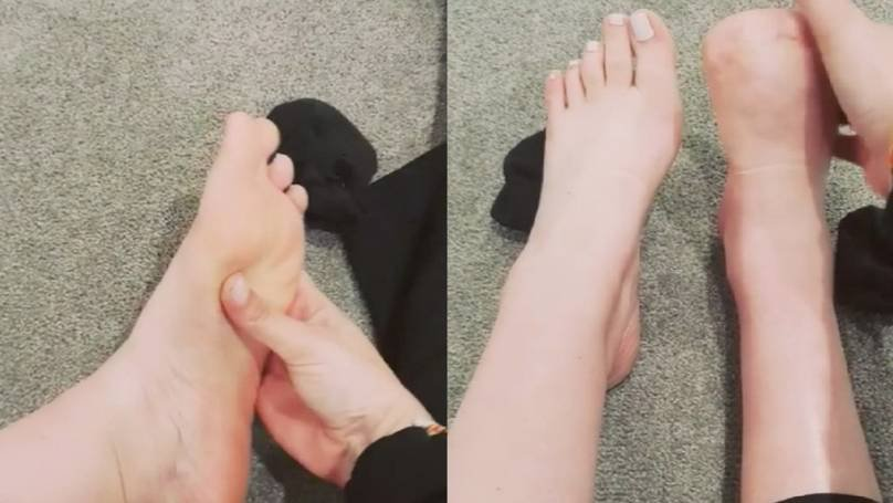 Amputated toes of lady who did a fish pedicure spa treatment